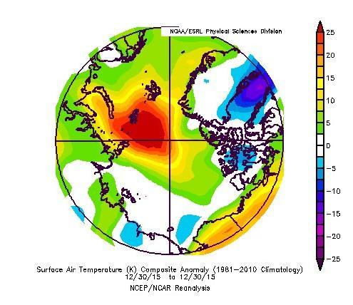 NOAA-anomT_20151230