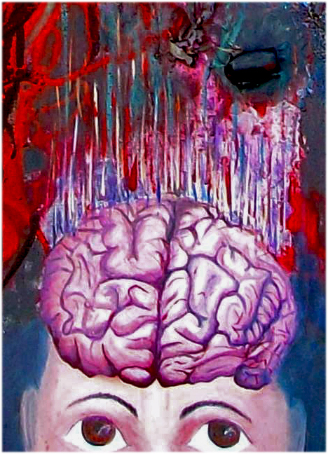 Alice's brain